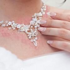 حساسیت پوستی به بدلیجات
